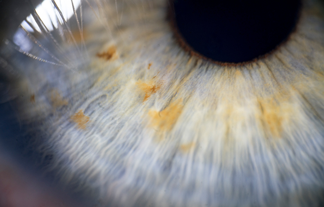 Macro-Photography-Eye-LensRentals-small